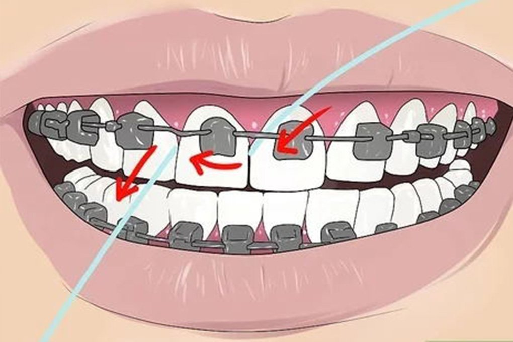 floss with braces