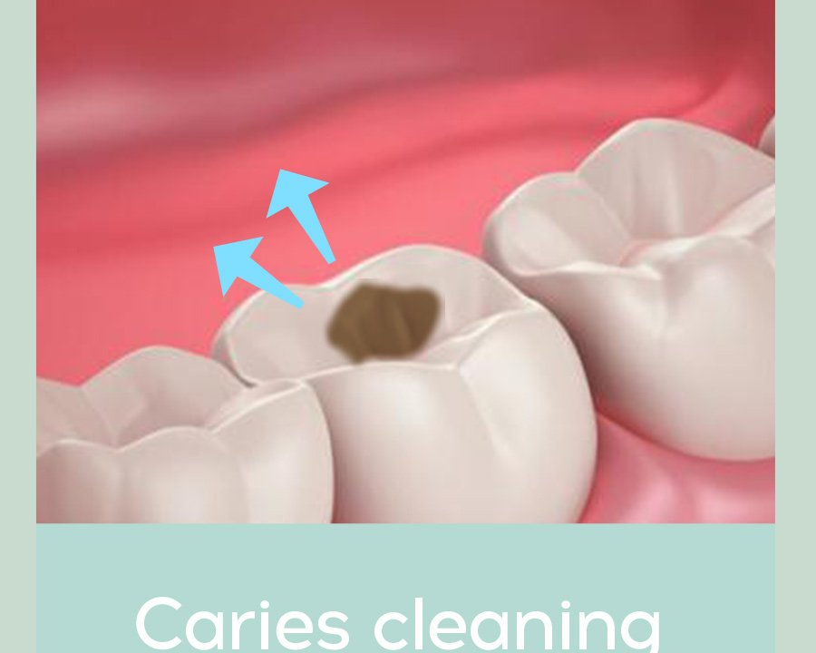 carless cleaning